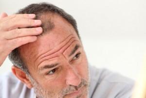 causes_of_hair_loss