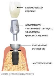 implantation shema implant